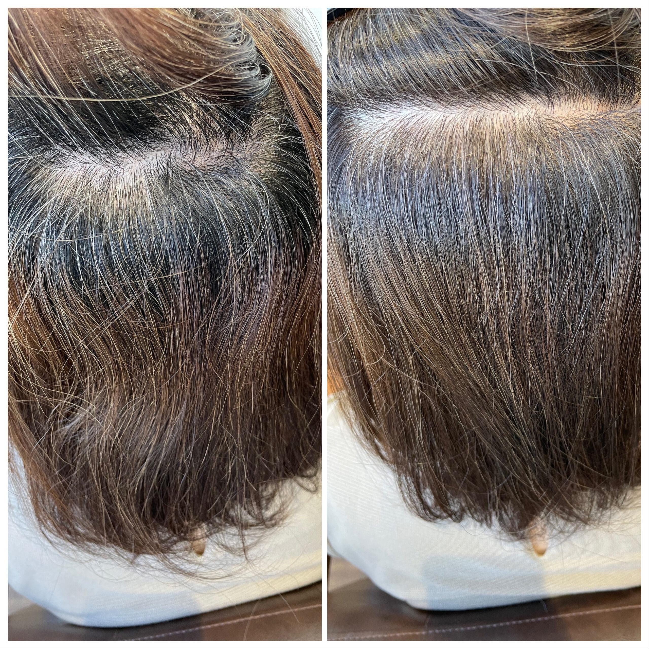 大分県別府市 白髪はしっかり染める方法と明るく染めてぼかす方法があります ビフォーアフター